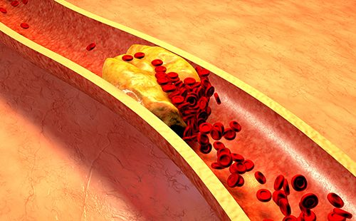 Cholesterol plaque in the artery